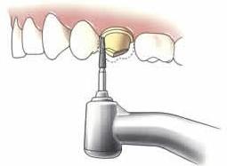 1. Afslijpen van de tand of kies Allereerst wordt een deel van de tand of kies afgeslepen, totdat er genoeg ruimte is om een kroon of brug te maken. Zo nodig krijgt u een platselijke verdoving.