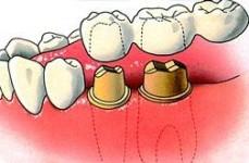 Bij een vrij-eindigende brug bevinden de pijlers zich aan een zijde van de ontbrekende tand of kies.
