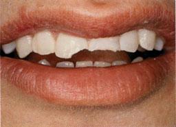 tand-gebroken