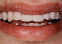 tand-gerepareerd