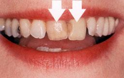 tanden-verkleurd-en-niet-mooi op rij