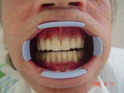 tanden van patient 2 na behandeling