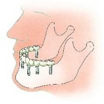 Brug op 6 implantaten