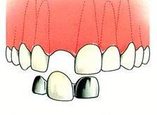 Etsbrug Voor deze constructie hoeft nauwelijks iets van de gave tanden te worden geslepen. De etsbrug wordt vooral gebruikt ter vervanging van een of twee tanden.