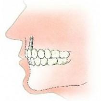 Een tand is vervangen door een implantaat een en kroon