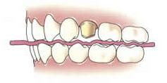 3. Beetregestratie Met de beetregistratie bepaalt de tandarts hoe de tanden en kiezen van uw onder- en bovenkaak op elkaar passen. Daarvoor is een afdruk van de tegenovergelegen kaak nodig. Hiervoor gebruikt de tandarts een wasplaatje.