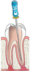 wortelbehandeling-2