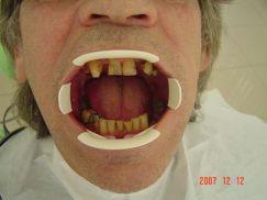 tanden van patient 2 vóór behandeling