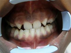 afgesleten tanden